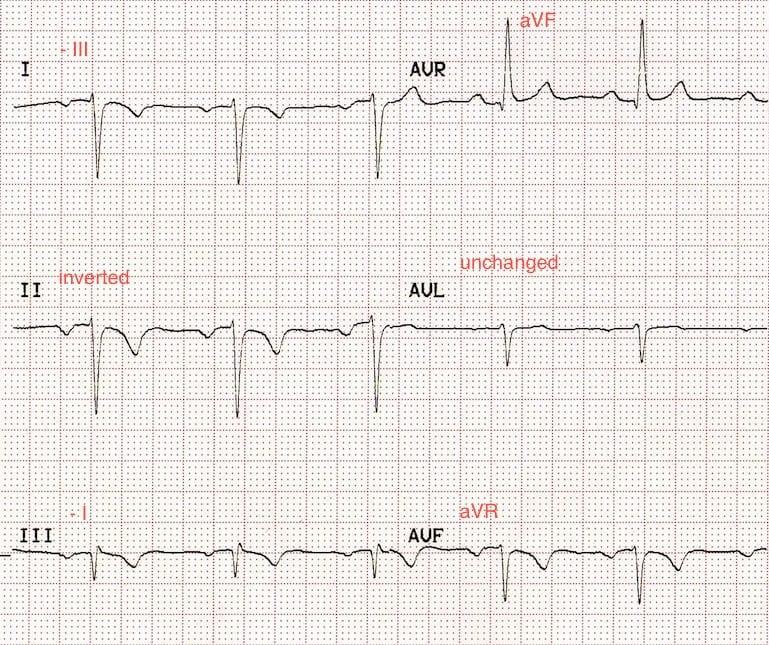 ECG Leads RA LL Reversal