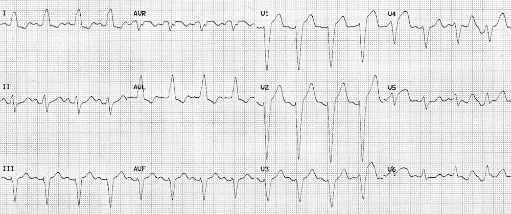 ECG Left Bundle Branch Block LBBB