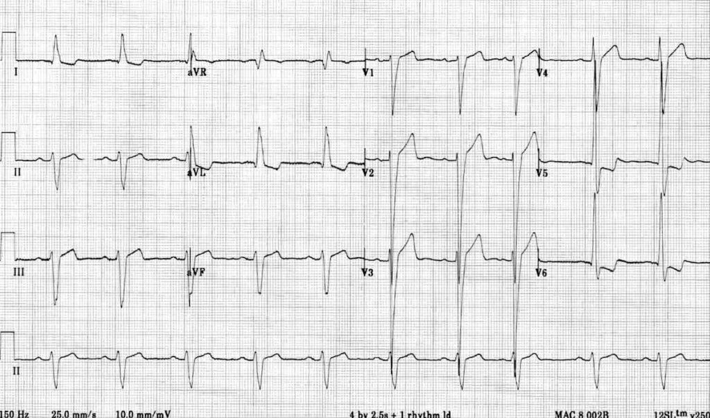 ECG Left ventricular hypertrophy (LVH) 2