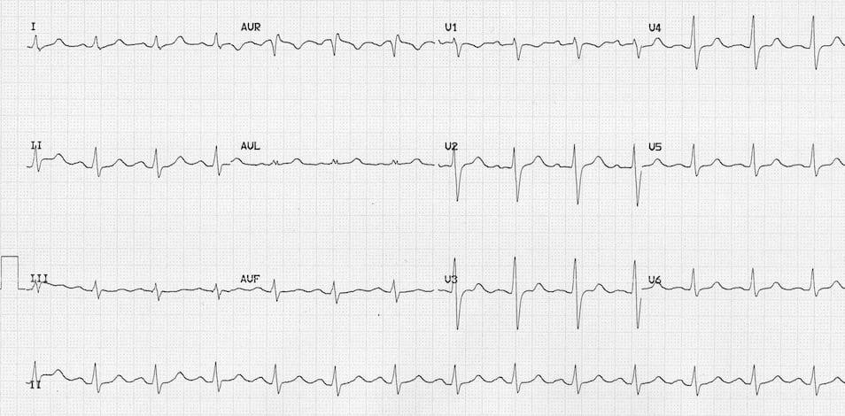 ECG Massive Carbemazepine OD 1