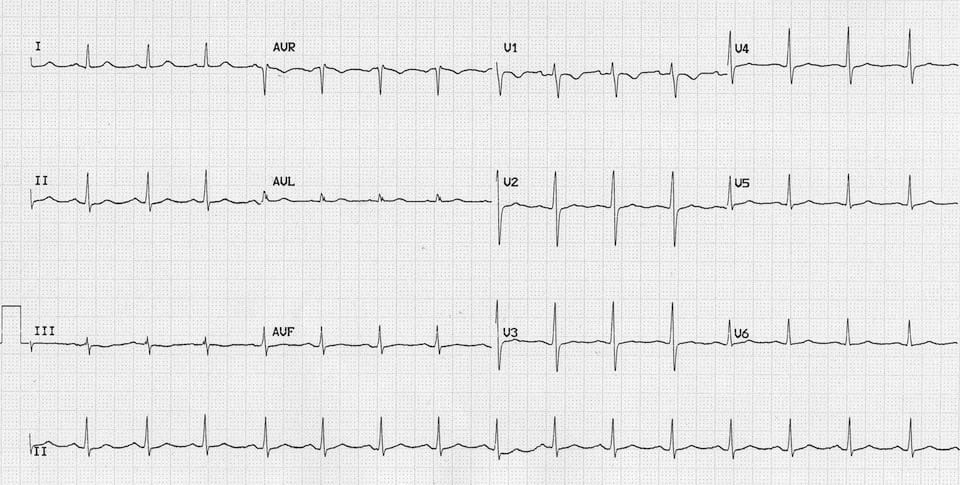ECG Massive Carbemazepine OD 2