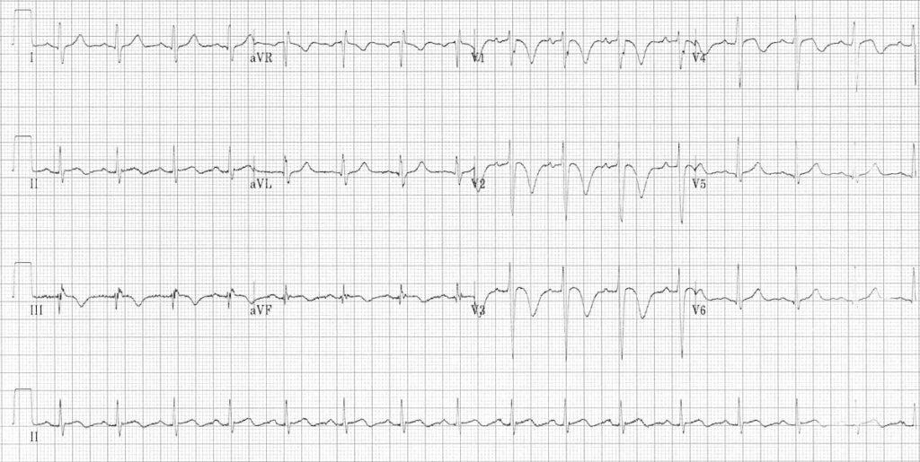 ECG Massive PE PTE pulmonary embolus 2