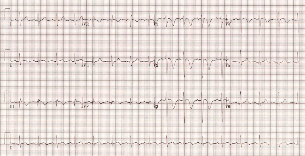ECG Massive Pulmonary embolus RVH RV Strain