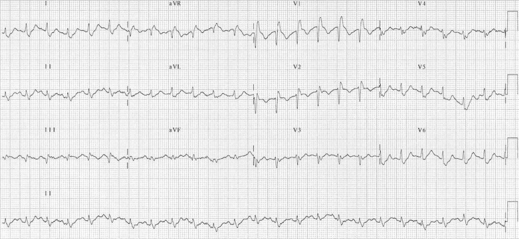 ECG Massive bilateral pulmonary embolus