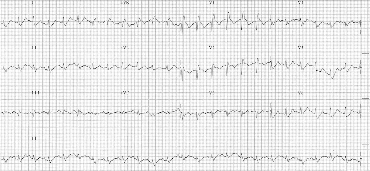 ECG Massive bilateral pulmonary embolus