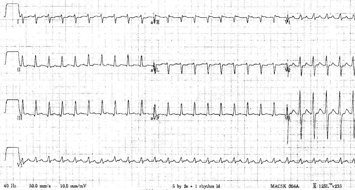 ECG Narrow-complex tachycardia 12 day old 50mms