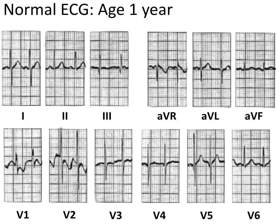 ECG Normal Pediatric ECG aged 1 year