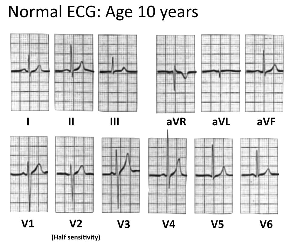 ECG Normal Pediatric ECG aged 10 years