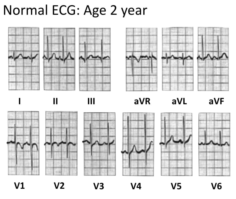ECG Normal Pediatric ECG aged 2 years