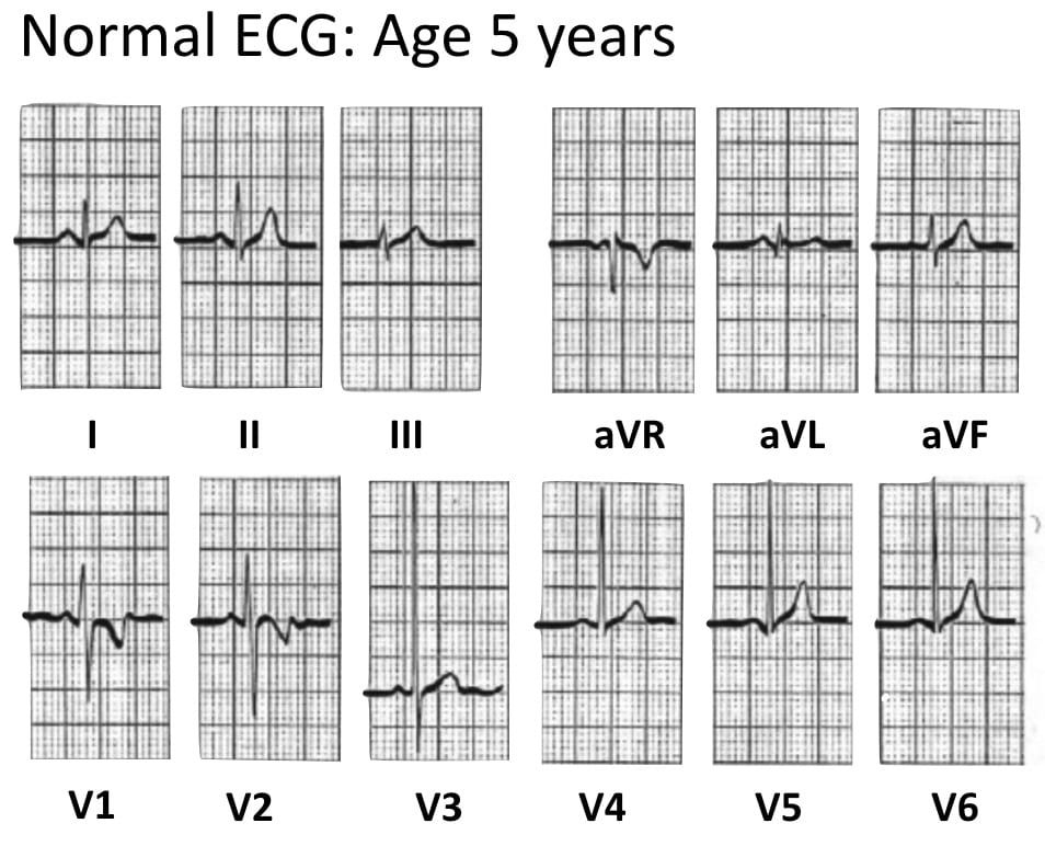 ECG Normal Pediatric ECG aged 5 years