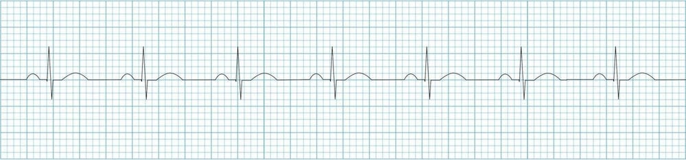 ECG Normal sinus rhythm strip