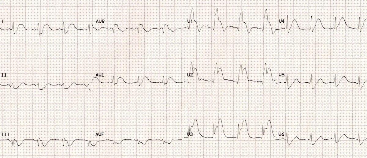 ECG Ostial LAD occlusion (septal STEMI) 2