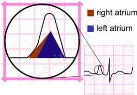 ECG P wave right atrial hypertrophy RAH