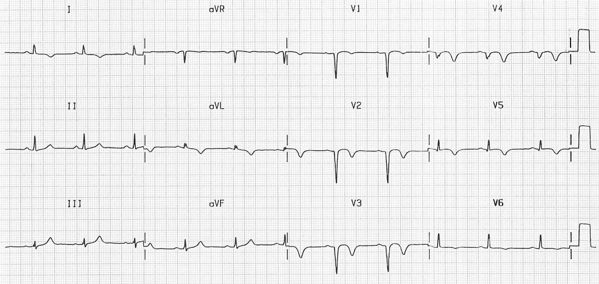 Poor R Wave Progression (PRWP) • LITFL • ECG Library Diagnosis