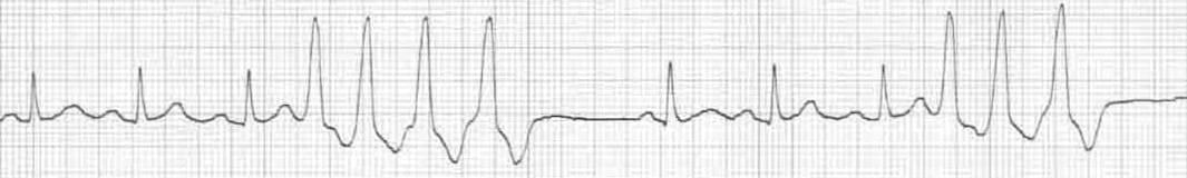 Premature Ventricular Complex (PVC) • LITFL • ECG Library Diagnosis