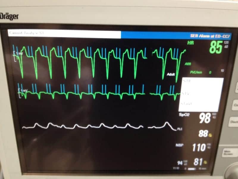 ECG Pacemaker Mediated Tachycardia PMT Magnet Mode