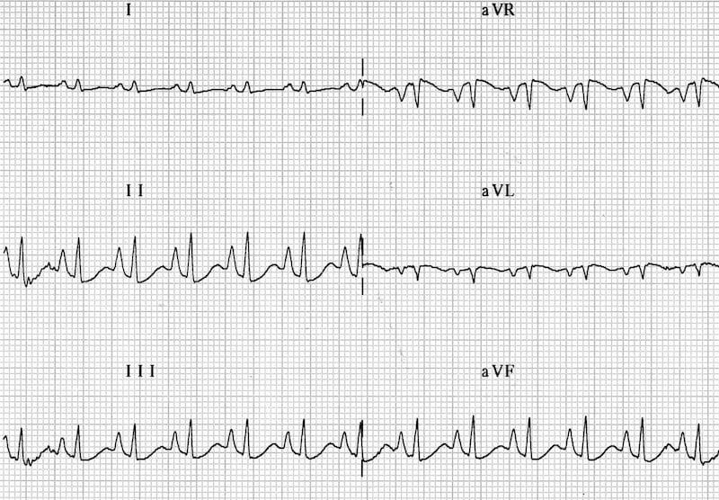 ECG Peaked P waves (P pulmonale) RAH