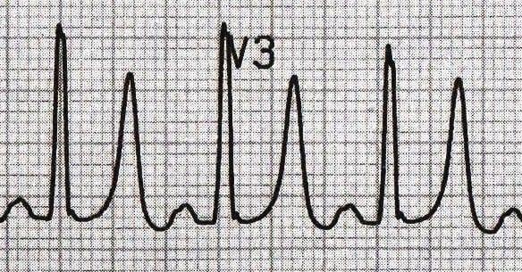 ECG Peaked T waves hyperkalemia