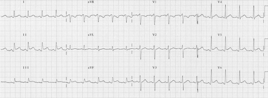 ECG Pericarditis 2