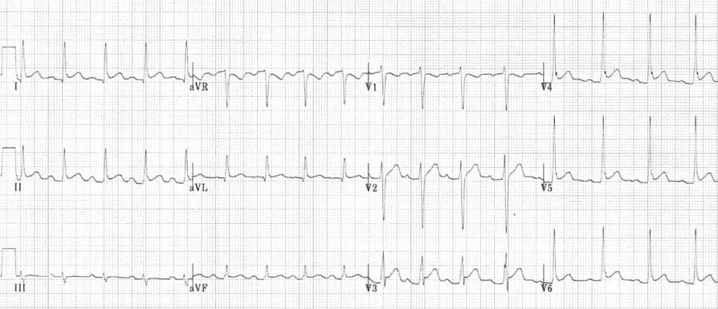 ECG Pericarditis 3