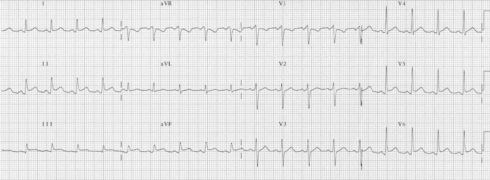 ECG Pericarditis ST changes