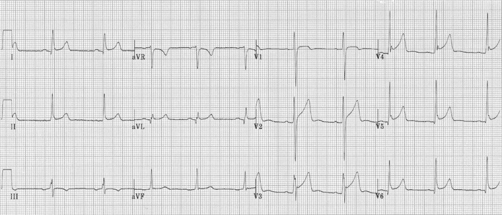 ECG Pericarditis or BER