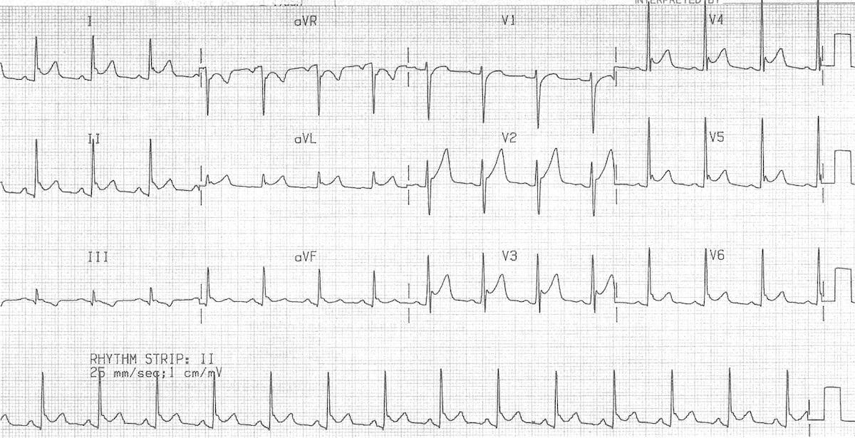 ECG Pericarditis plus Benign early repolarisation BER 6