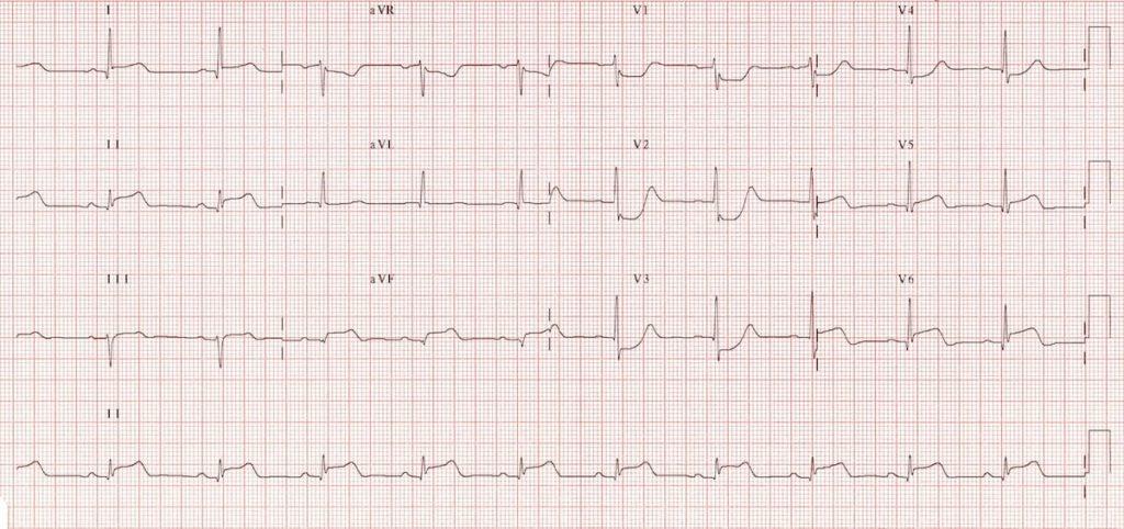 ECG Posterior AMI 1
