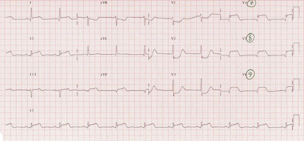 ECG Posterior AMI 1b V789