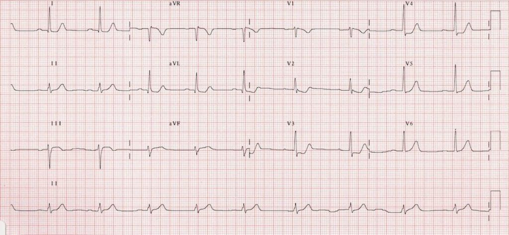 ECG Posterior AMI 2