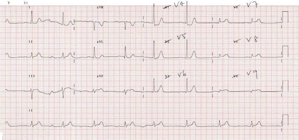 ECG Posterior AMI 2a V789