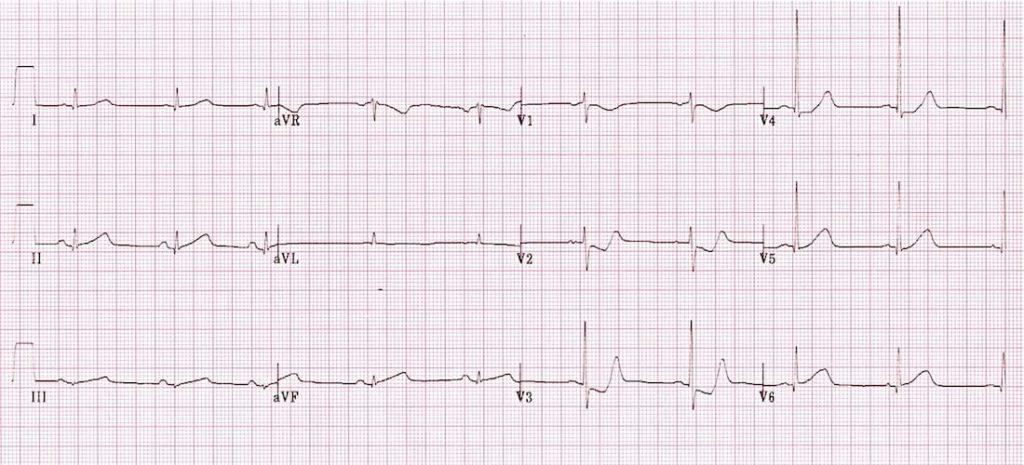ECG Posterior AMI 3