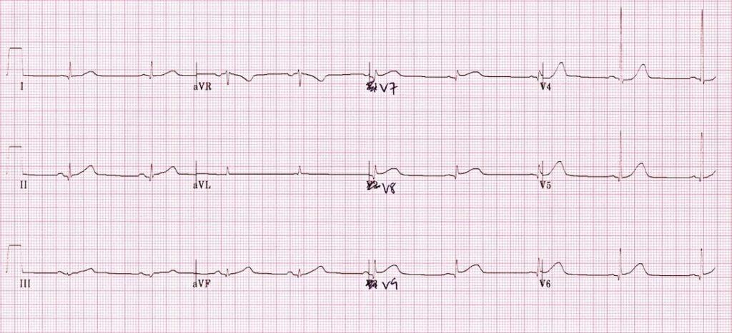 ECG Posterior AMI 3 V789