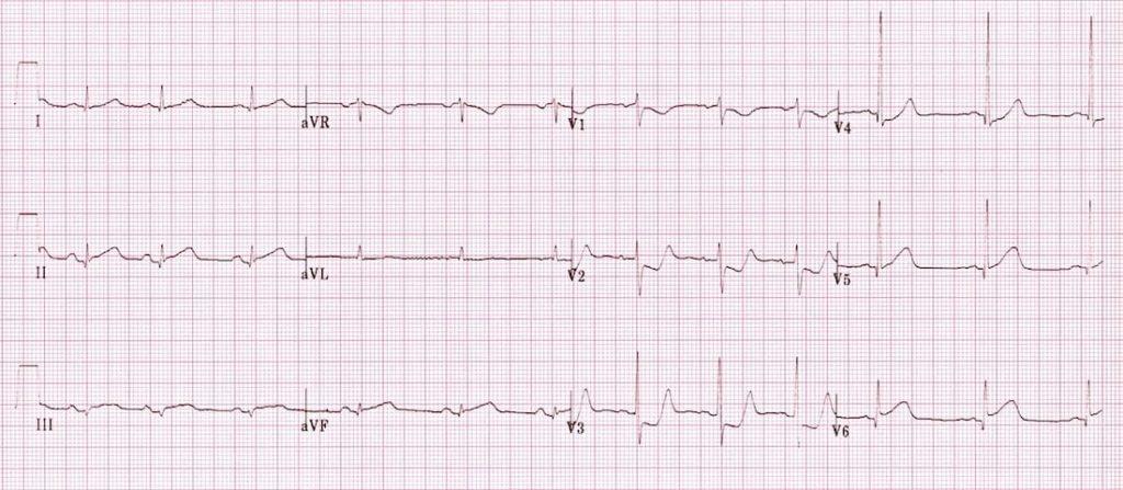ECG Posterior AMI 3b
