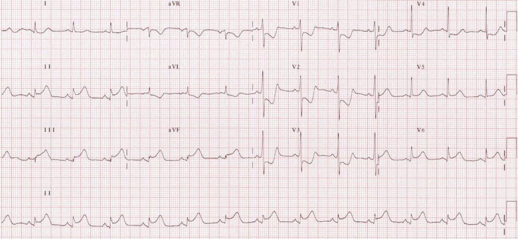 ECG Posterior AMI 4a