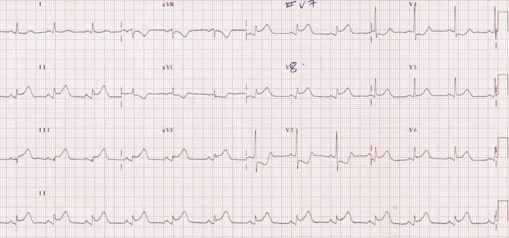 ECG Posterior AMI 4a V789