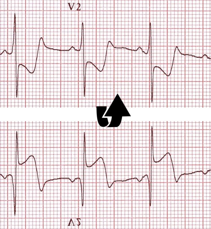 ECG Posterior AMI flip image V2 2