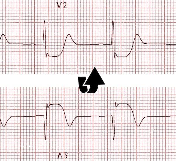ECG Posterior AMI flip image V2