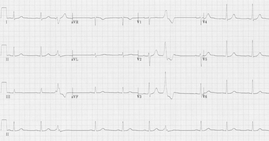 ECG Premature Ventricular Complex (PVC) Quadrigeminy