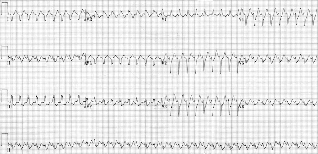 ECG Primary idiopathic fascicular VT 3a