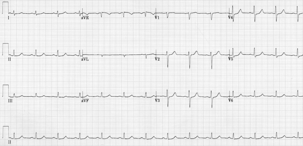 ECG Primary idiopathic fascicular VT 3b reversion