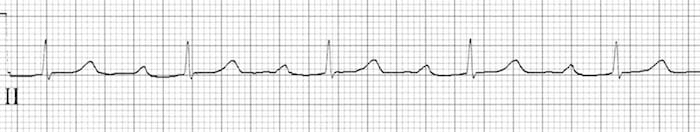 ECG Prolonged PR 1st Degree Block