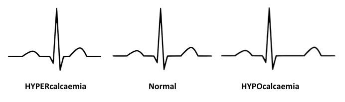 ECG-QT-changes-Hypocalcaemia-Hypercalcaemia 2