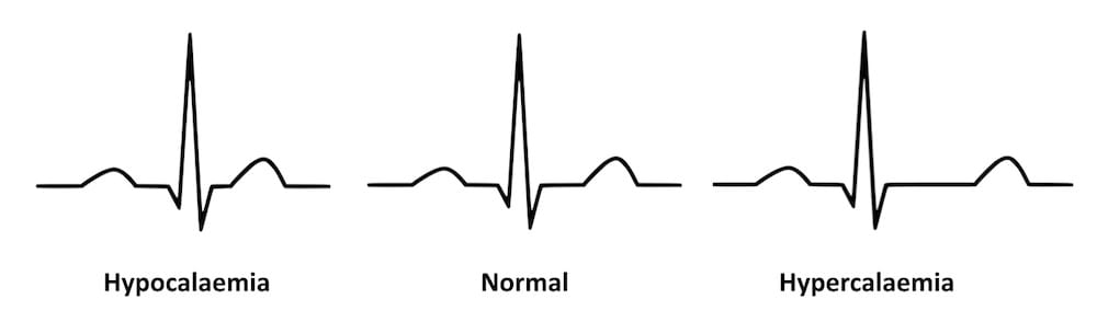 ECG QT changes Hypocalcemia Hypercalcemia