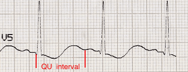 ECG QU interval Hypokalemia