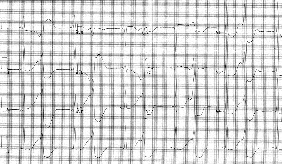 ECG R on T 2