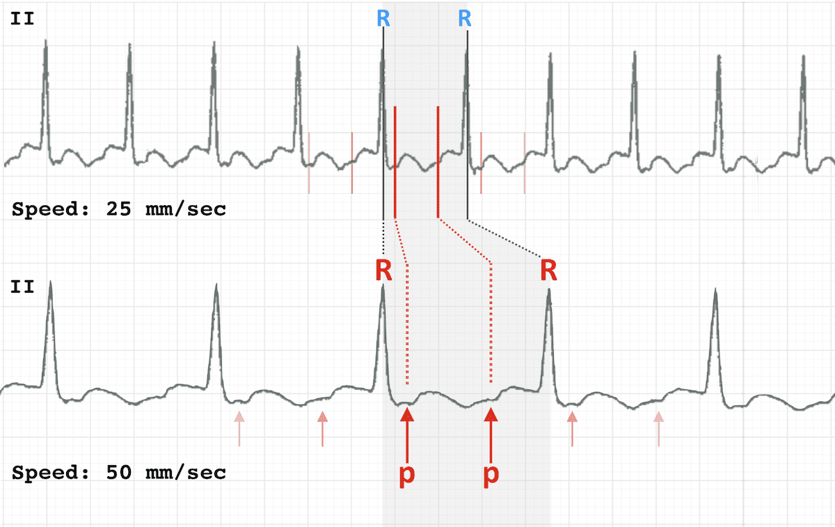 ECG RATE 25 versus 50 mm sec show p waves flutter