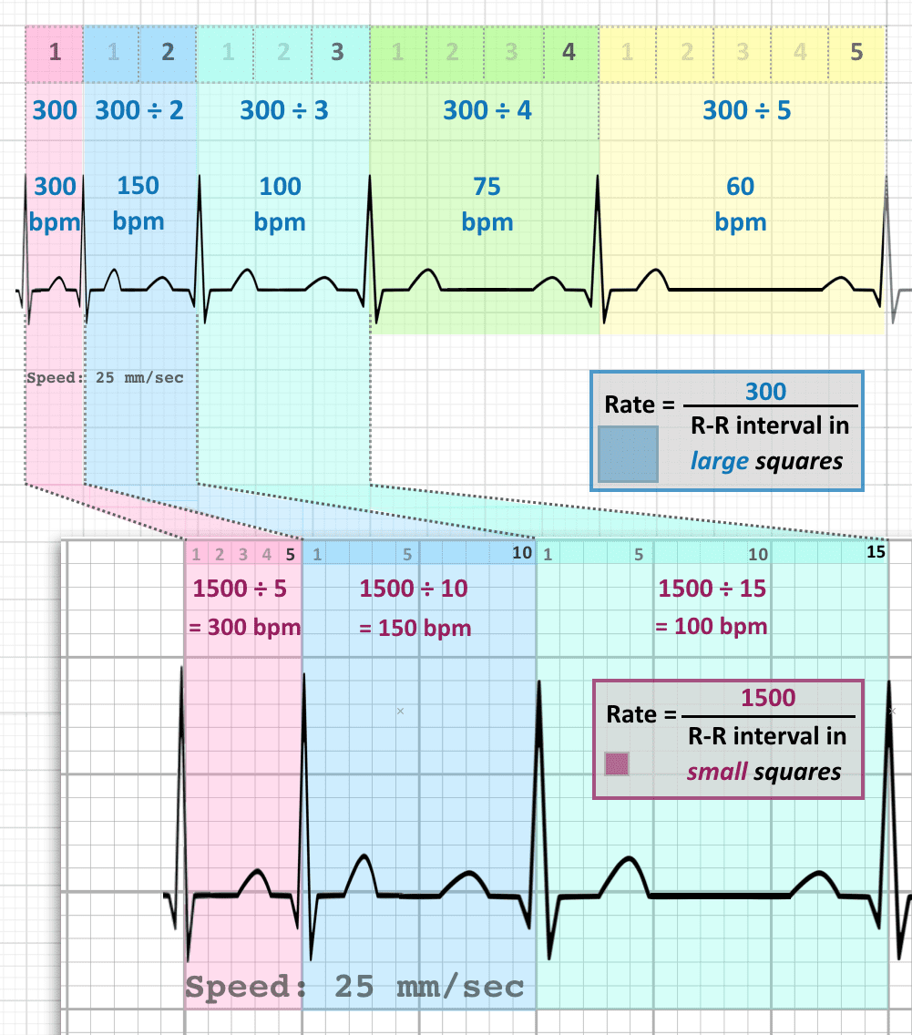 ECG RATE calculation 300 1500 rules 25 mm sec