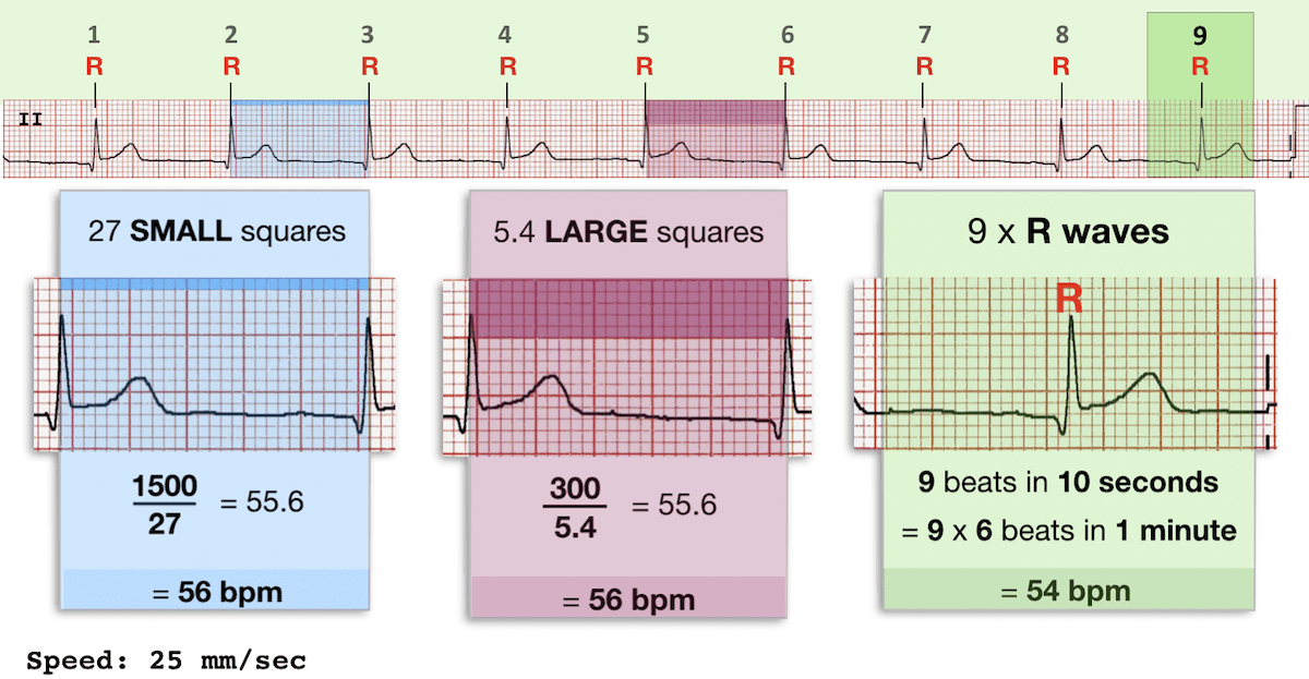ECG RATE rhythm strip 10 seconds 300 1500 rules ECG