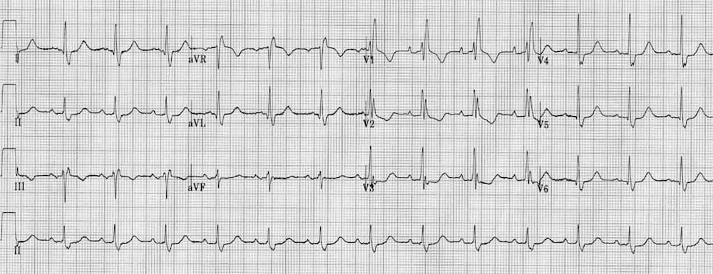 ECG RBBB Right bundle branch block ST changes